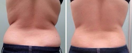 TightSculpting clinic result